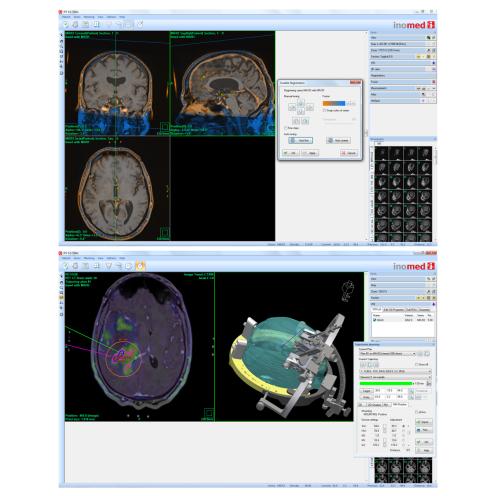Fusions-Modul für IPS Automatische Image Fusion